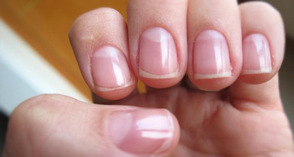 Eliminar el amarillo de las uñas